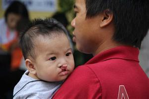 Cleft lip, palate surgeries offered free of charge