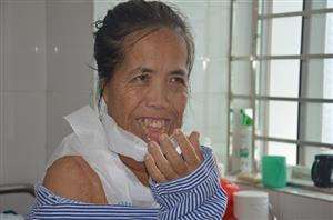 Woman suffering from horrific facial burns has life-transforming operation