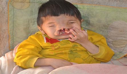 Eight-year old boy with facial deformity