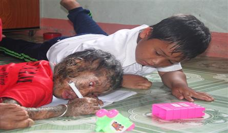 DTiNews readers support little girl with serious skin disease