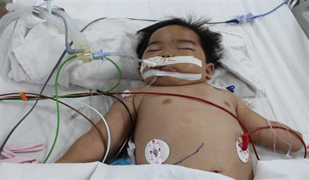 Little boy in critical condition after drinking petrol