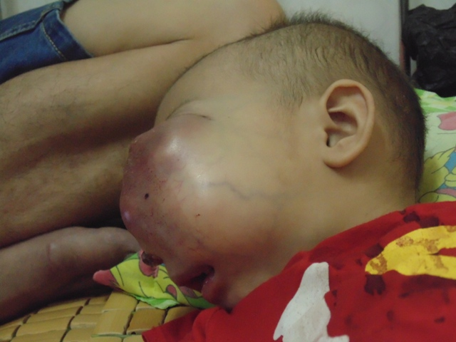 Little girl suffers from large tumour
