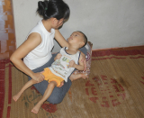 Little boy suffers from cerebral atrophy